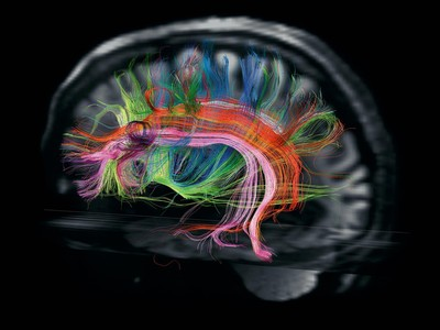What is a CTE Scan | Palm Harbor | Brain Fitness Centers of Florida